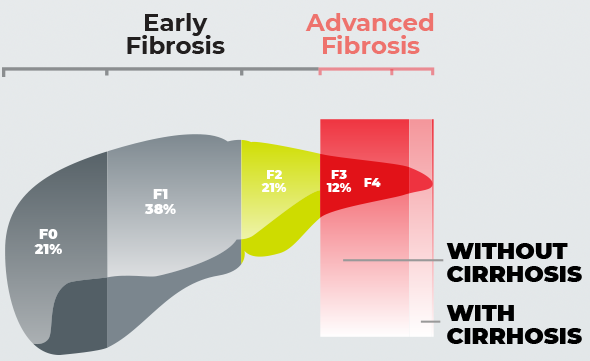 Patients with advanced fibrosis due to NASH have elevated risk and urgent action is needed.
